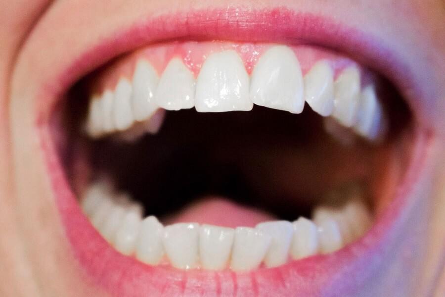 comment-blanchir-ses-dents-naturellement