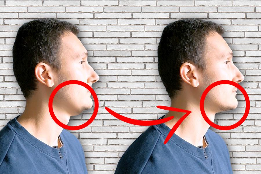 comment éliminer double menton naturellement